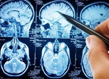 Quais os sintomas do tumor cerebral?