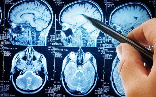 Quais os sintomas do tumor cerebral?